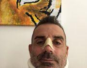 Роналду сломал нос и травмировал позвоночник вратарю Кьево