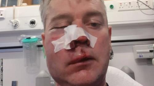 В Ирландии жестоко избили судью после матча