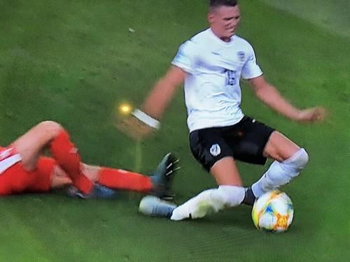 Игрок сборной Австрии получил жуткую травму