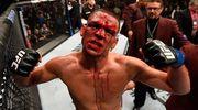 8 звезд UFC, тела которых навсегда изменили травмы