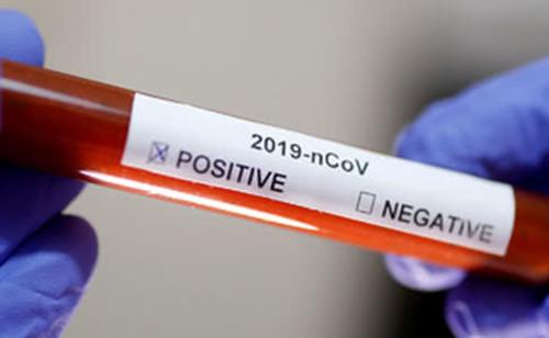 Число умерших от коронавируса перевалило за 100 тысяч