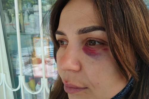 У Криму тренер з ММА із Росії побив продавчиню за прохання надіти маску