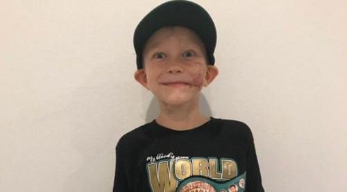 ФОТО. 6-річний хлопчик-герой отримав пояс чемпіона від WBC