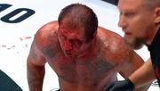 ФОТО. Ужасное лицо после боя. Емельяненко попал в больницу с переломом носа