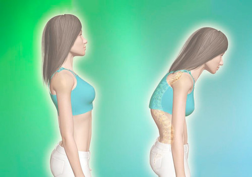 Навіщо нам потрібна рівна спина і на які аспекти життя вона впливає