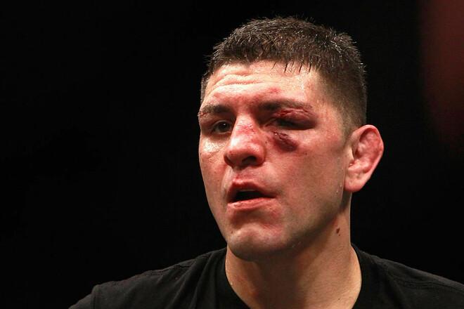 Возвращение легенды. Звезда UFC Ник Диас проведет первый бой за 6 лет