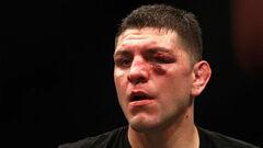 Повернення легенди. Зірка UFC Нік Діас проведе перший бій за 6 років