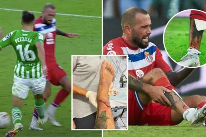 ФОТО. Кістка вилізла назовні: гравець Еспаньола отримав жахливу травму. 18+