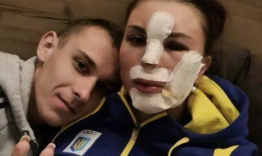 ФОТО 18+. Швы на лице. Биатлонистка Кривонос получила жуткую травму