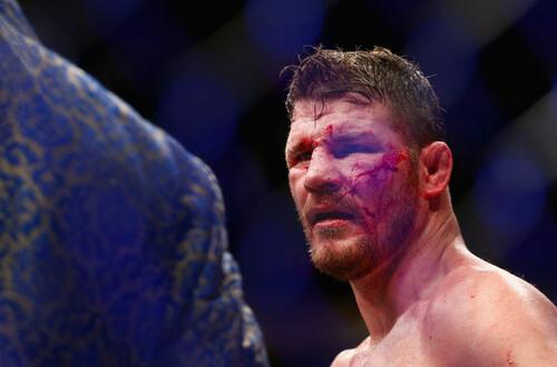 5 случаев, когда бойцы UFC участвовали в пьяных драках в баре