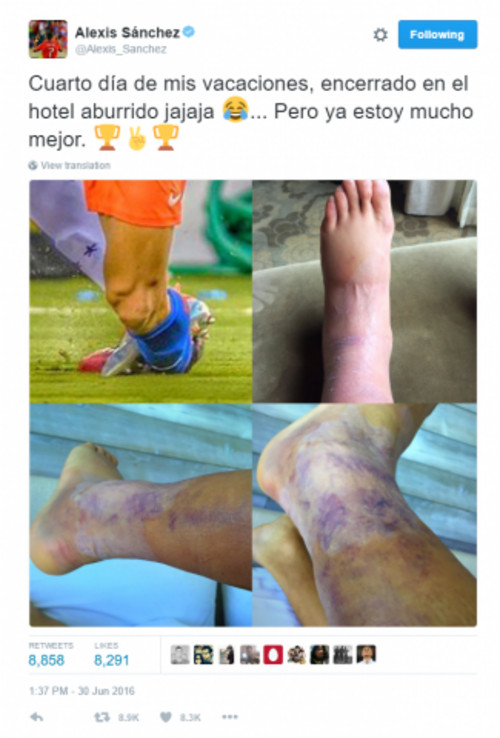 Алексис Санчес отыграл матч с серьезной травмой