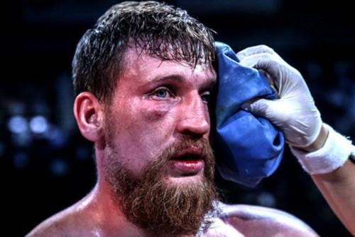 Кудряшову и Чахкиеву рекомендовано воздержаться от бокса