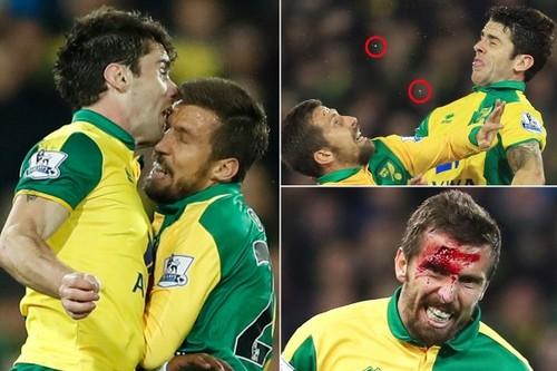 Разбитая голова и два выбитых зуба - так играет Норвич!