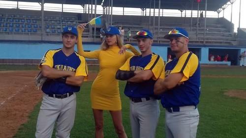 ФОТО ДНЯ. Топ-модель Алина Байкова поддержала украинских бейсболистов